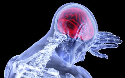 Inflamación del sistema nervioso central